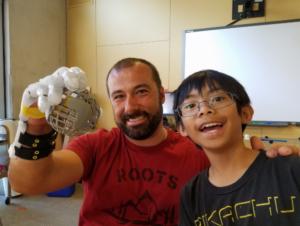Der überglückliche Nick mit seiner neuen 3D gedruckten Handprothese